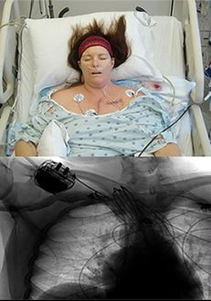 Heidi Dohse becoming a professional heart patient, picture given with permission